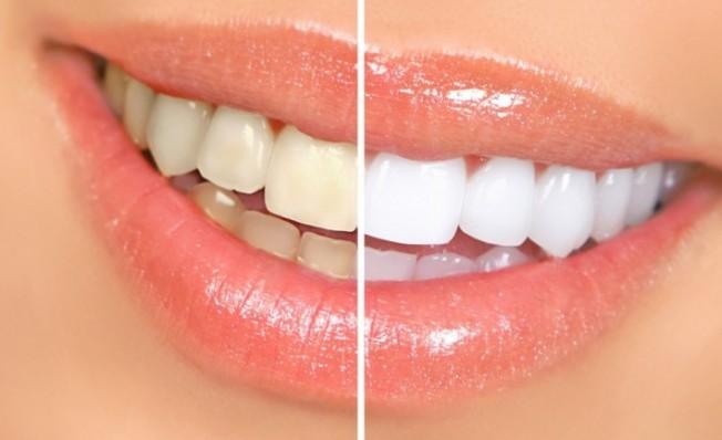 Smile-white-teeth-1024x732-710x434